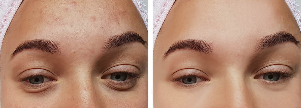 Eye bag removal - before-after