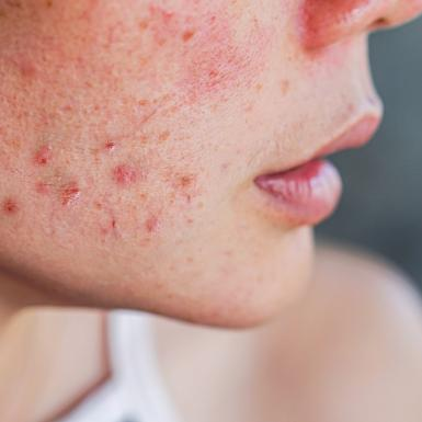 Singaporean Lady in need of acne treatment
